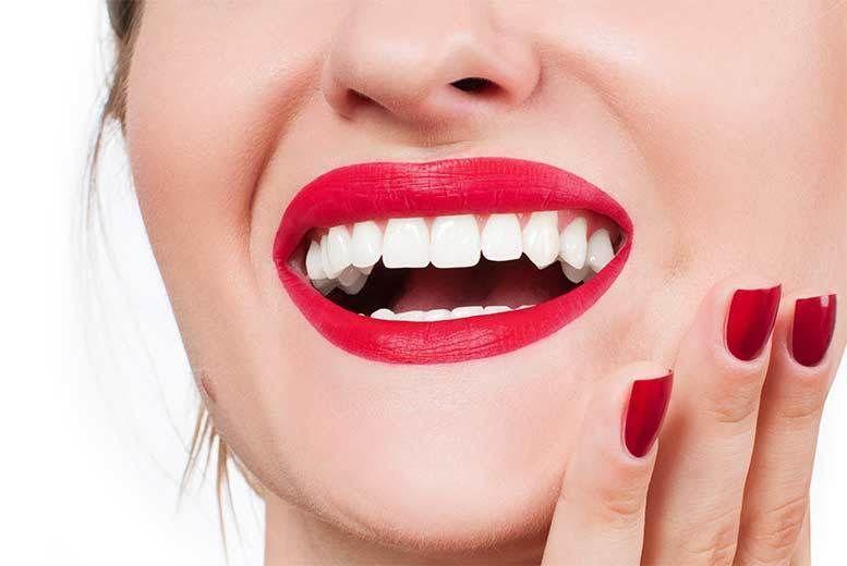 Laser Teeth Whitening London Wowcher