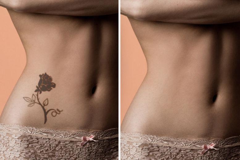 Laser Tattoo Removal | Birmingham | Wowcher