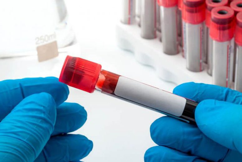 Online Phlebotomy Training Course Voucher