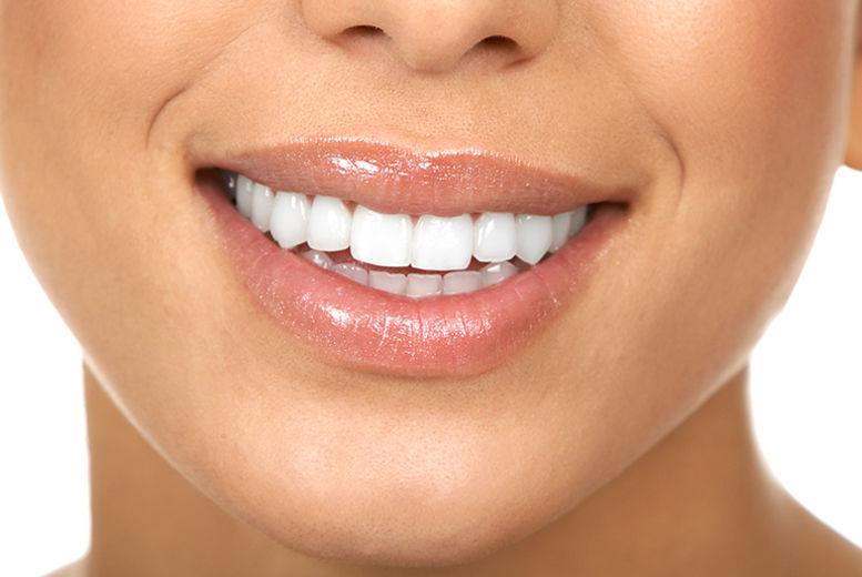 Dental Implant & Crown Bury Voucher